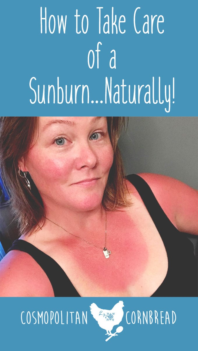 How to Take Care of a Sunburn Naturally | Get tips and tricks for dealing with the summer sun from Cosmopolitan Cornbread